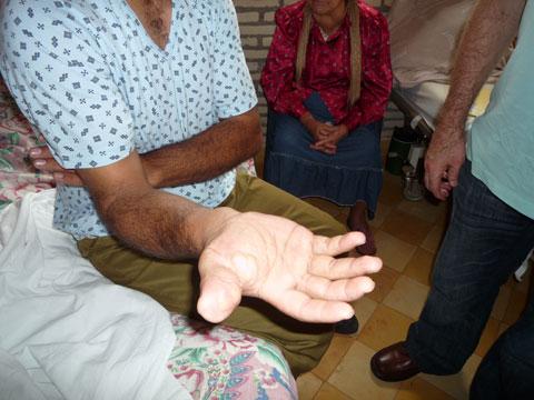 Tumor im Bereich der Handinnenfläche und des Handgelenks